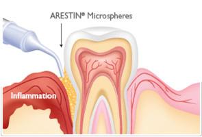 arestin1